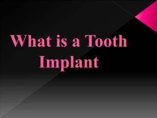 What is a Tooth Implant