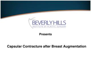 Capsular Contracture after Breast Augmentation