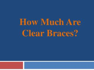 How Much Are Clear Braces?