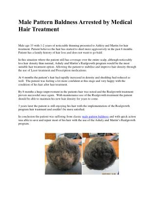 Male Pattern Baldness Arrested by Medical Hair Treatment