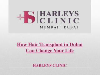 How Hair Transplant in Dubai Can Change Your Life