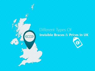 Different Types of Invisible Braces and Their Benefits