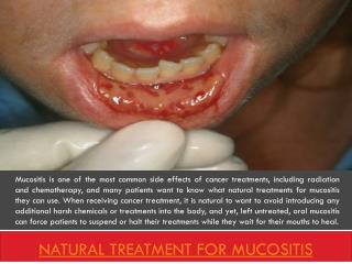 Natural cure for mucositis