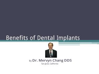 Benefits of Dental Implant - By Dr. Mervyn Chang DDS