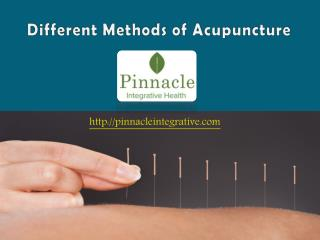 Different Methods of Acupuncture