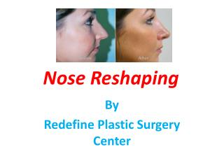 Nose Reshaping Surgery in hyderabad