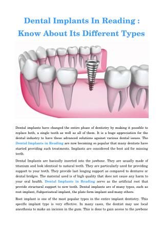 Dental Implants Reading Pa