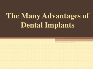 The Many Advantages of Dental Implants