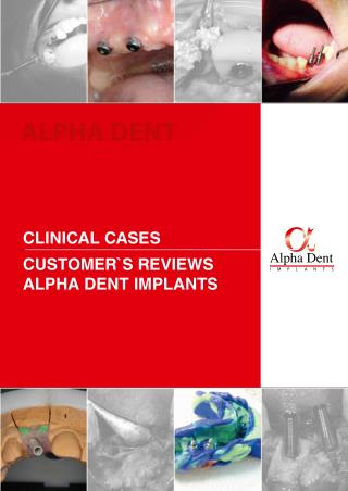 Alpha Dent Implants clinical cases and customer's reviews