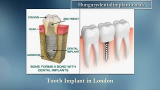 Tooth Implant In London and Budapest