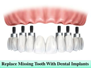 Replace Missing Tooth With Dental Implants