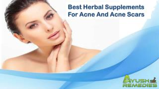 Best Herbal Supplements For Acne And Acne Scars