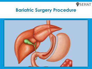 Bariatric surgery procedure