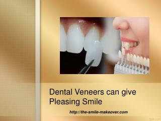 Dental Veneers can give Pleasing Smile