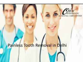 Painless Tooth Removal in Delhi