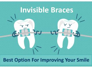 Best Option For Improving Your Smile - Invisible Braces