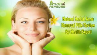Natural Herbal Acne Removal Pills Review By Health Expert