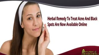 Herbal Remedy To Treat Acne And Black Spots Are Now Available Online