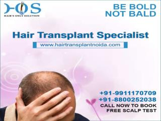 Hair Loss Treatment Noida