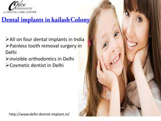 Dental implants in kailash Colony