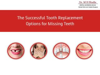 The Successful Tooth Replacement Options for Missing Teeth