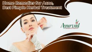 Home Remedies for Acne, Best Pimple Herbal Treatment