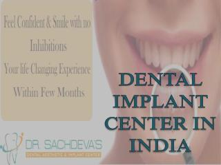 Best Dental Implant | Dental Courses In India