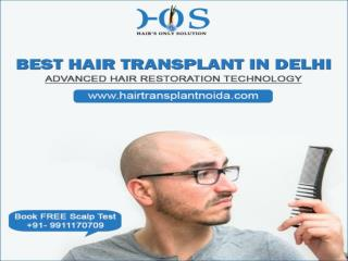 Specialist of Hair Transplant in Delhi