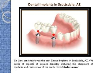 Implant Dentist in Scottsdale, AZ