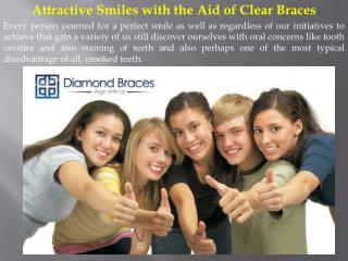 Attractive Smiles with the Aid of Clear Braces