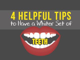 4 Helpful Tips to Have a Whiter Set of Teeth