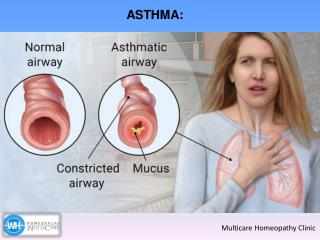 What is Asthma ? How Can Asthma Be Prevented?