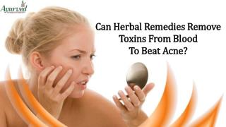 Can Herbal Remedies Remove Toxins From Blood To Beat Acne?