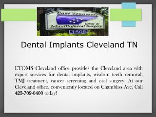 Dental Implants Cleveland TN