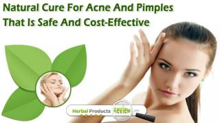 Natural Cure For Acne And Pimples That Is Safe And Cost-Effective