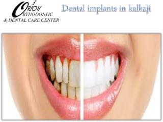 Dental implants in kalkaji