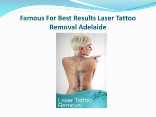 Famous For Best Results Laser Tattoo Removal Adelaide
