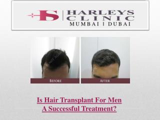 Is Hair Transplant For Men A Successful Treatment?