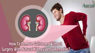 How To Remove Gallstones Without Surgery With Natural Kidney Detox Remedies?