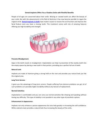 Dental Implants Offers You a Flawless Smile with Plentiful Benefits