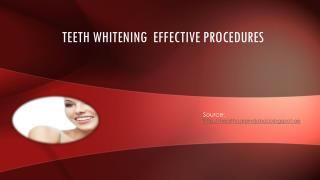 Teeth Whitening  Effective Procedures