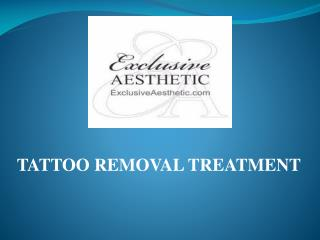 Looking Body tattoo Removal Treatment In Dubai
