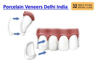 Porcelain Veneers Delhi India