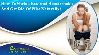 How To Shrink External Hemorrhoids And Get Rid Of Piles Naturally?