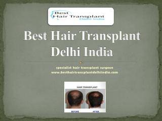 Best Hair Transplant FUE, FUT, Eyebrow Delhi, Hair Loss Treatment India