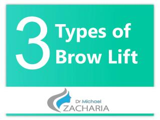 3 Types of Brow Lift