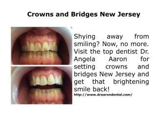 Crowns and Bridges New Jersey