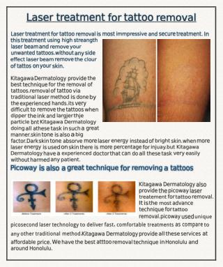 Laser treatement for tattoo removal