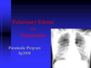 Pulmonary Edema vs  Pneumonia