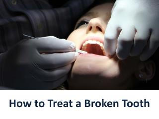 How to Treat a Broken Tooth